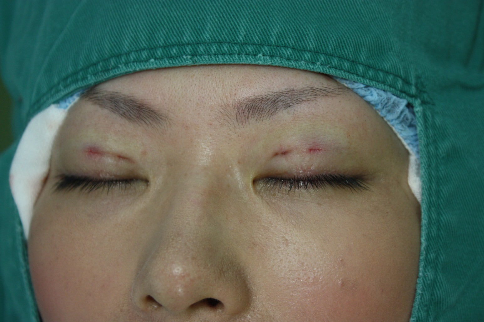 double eyelid suturing technique4
